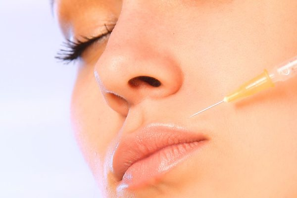 dermal fillers glasgow treatment