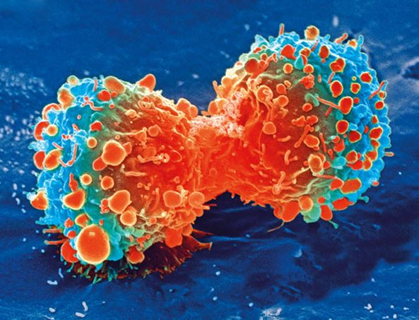 The Future Of Cancer Diagnosis